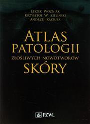 Atlas patologii złośliwych nowotworów skóry  Woźniak Leszek, Zieliński Krzysztof W., Kaszuba Andrzej-66720