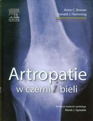 Artropatie w czerni i bieli  Brower Anne C., Flemming Donald J.-77665