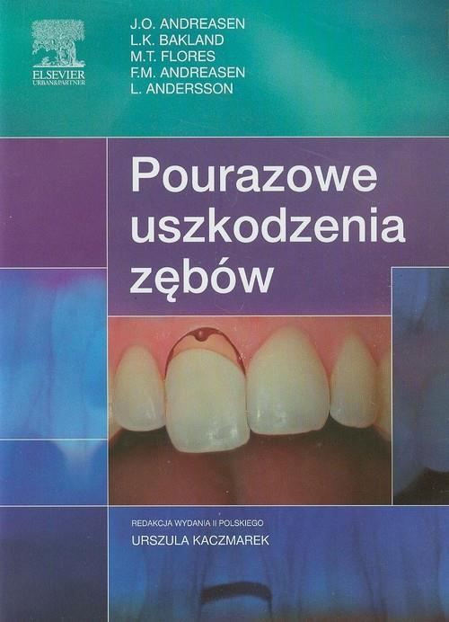 Pourazowe uszkodzenia zębów  Andreasen J.O., Bakland L.K., Flores M.T.-77865