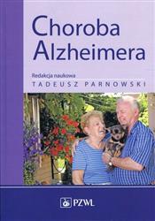 Choroba Alzheimera-171039