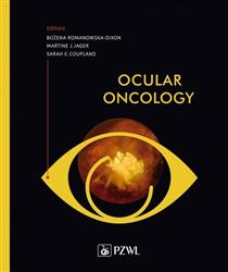 Ocular oncology-281178