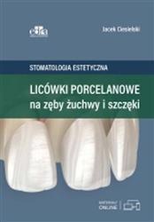 Licówki porcelanowe na zęby żuchwy i szczęki-289155