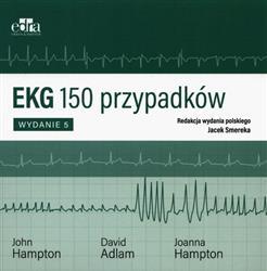 EKG 150 przypadków-286963
